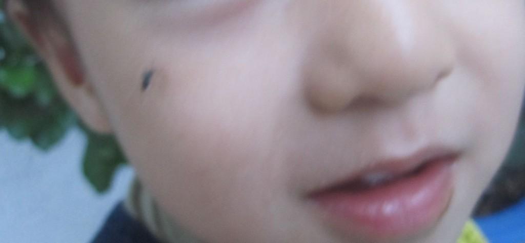 野外で遊ぶ幼児の頬から吸血する蚊