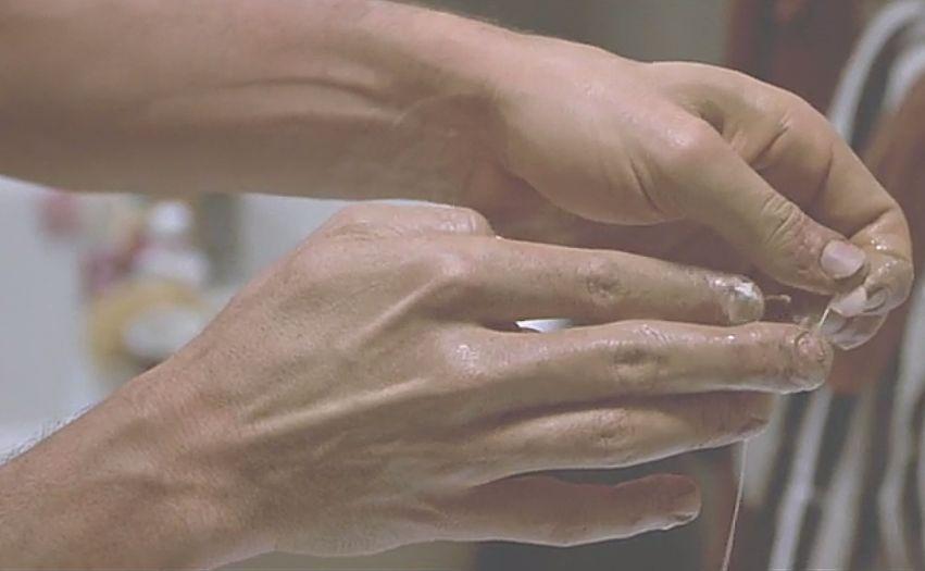 手の爪が剥がれるなど身体に異常が生じだすセル