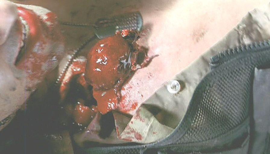 巨大なダニが皮膚を突き破り姿を現した!