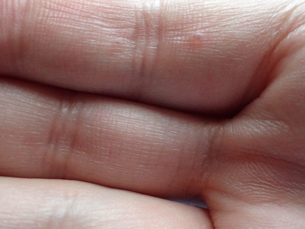 手の指にできた水泡は汗が原因の汗疱(かんぽう)?