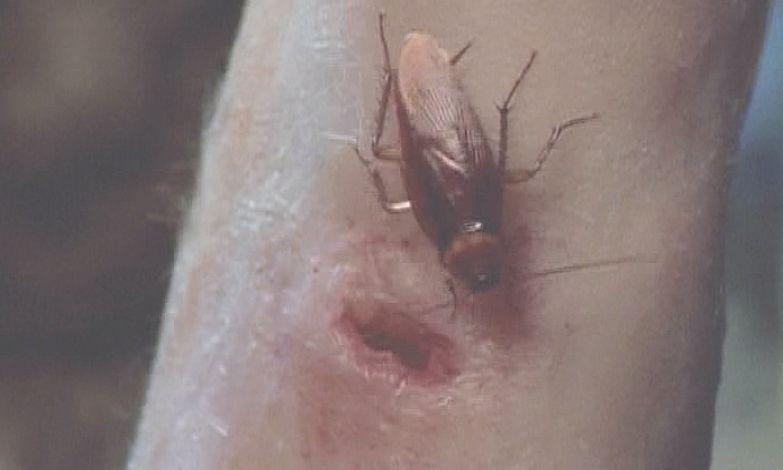 腕の傷口に害虫ワモンゴキブリが忍び寄る