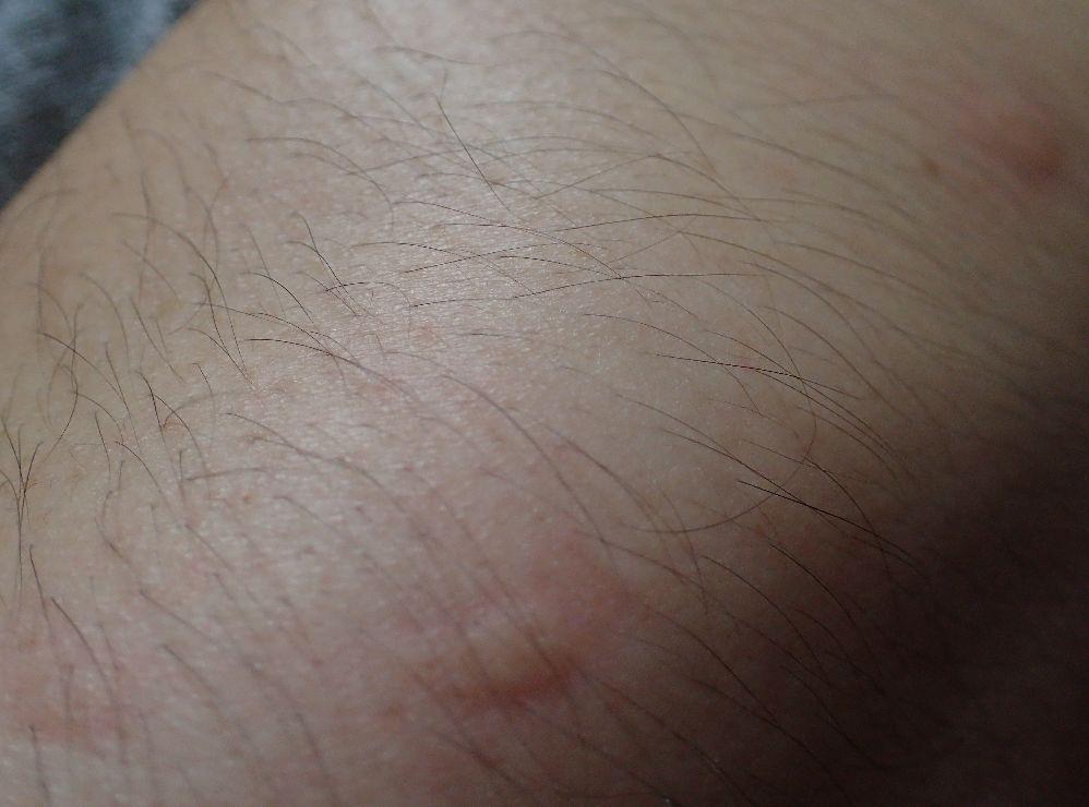作業中に全身をヤブ蚊に刺された