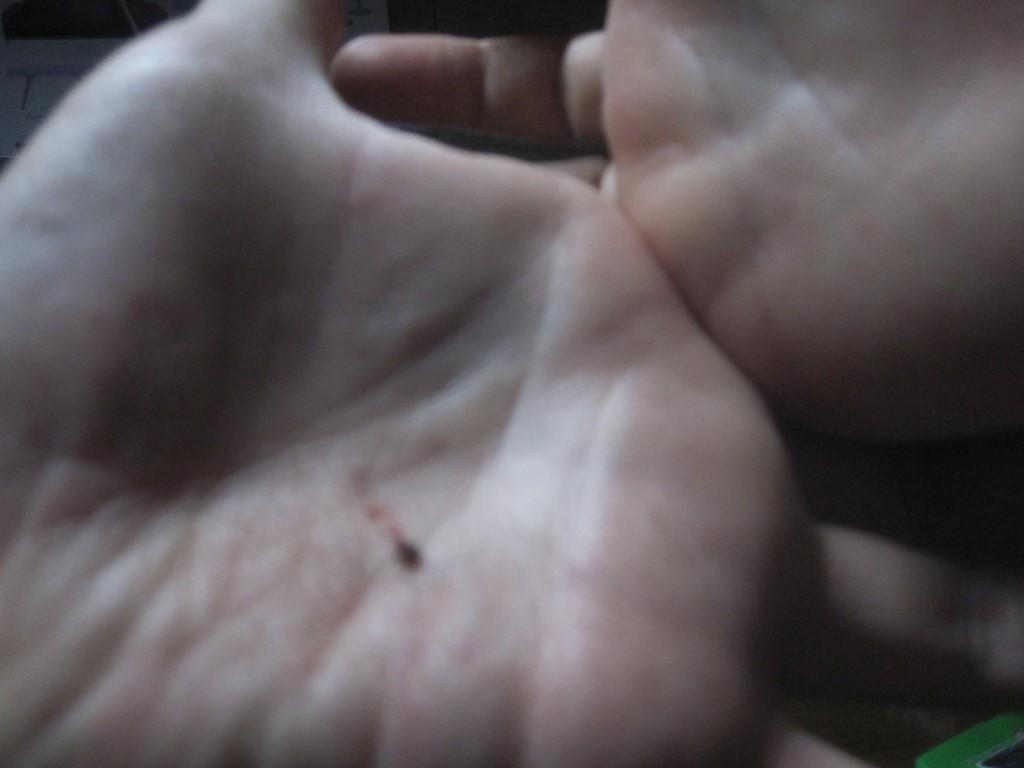 手のひらで叩き殺した蚊の死骸
