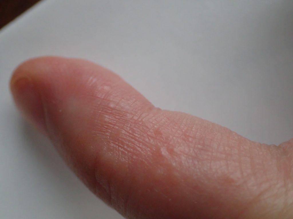 痒くて透明なブツブツ発疹が指に発症している!?